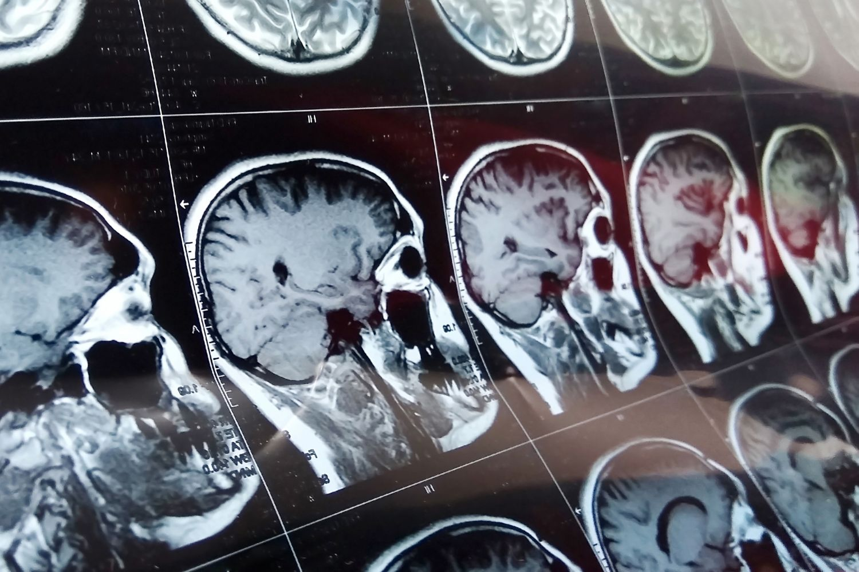 Gehirn-Scans; Thema: Suizid-Neigung