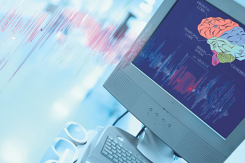 Computerbildschirm zeigt Querschnitt eines Gehirns.